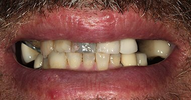 full mouth 3 before