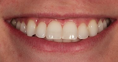 office teeth whitening after